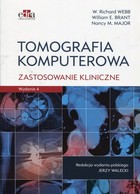 Tomografia komputerowa - William E. Brant, Richard W. Webb, Nancy M. Major
